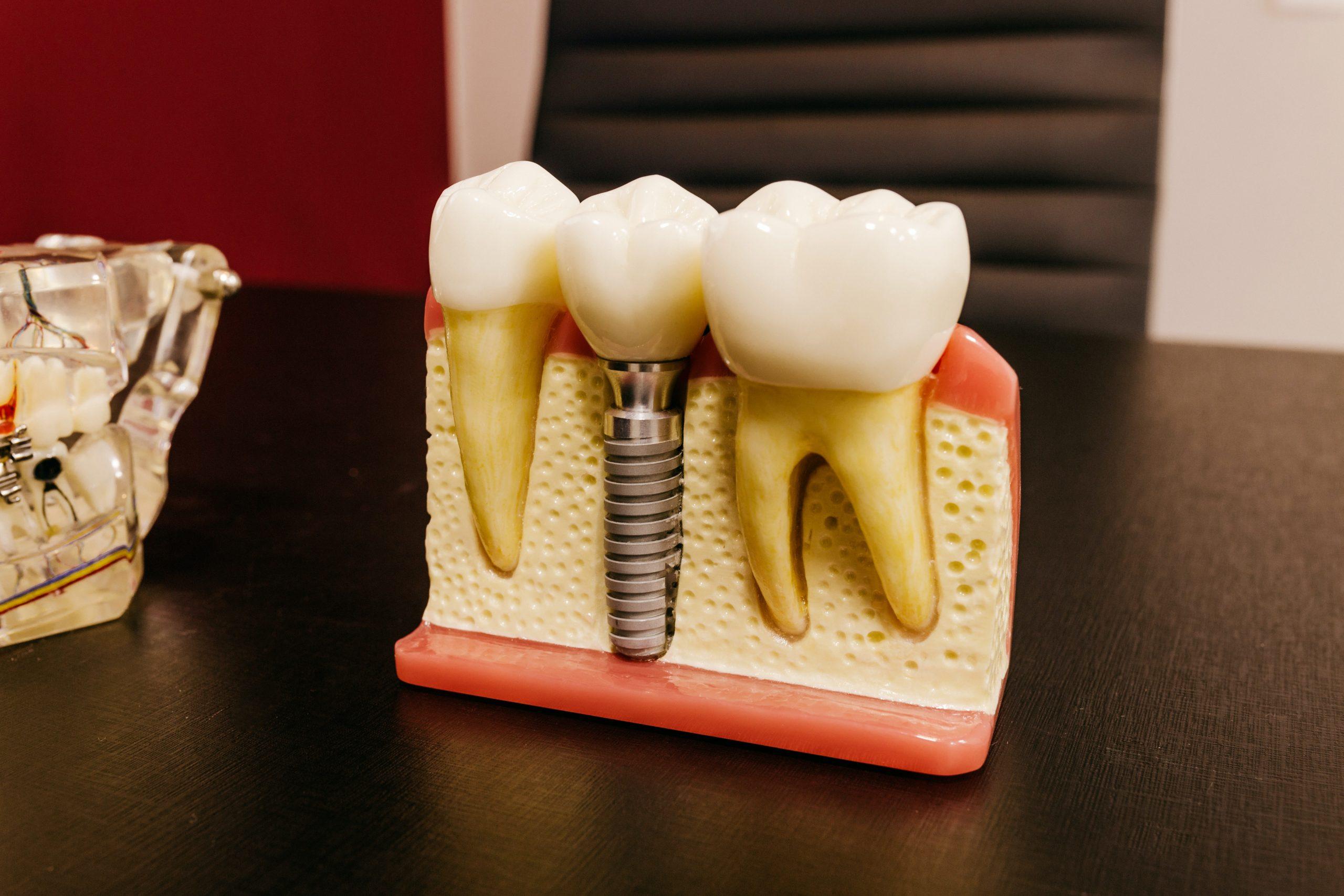 Finding a Dentist: Dental Implants